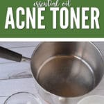 Essential Oils for Acne DIY Tea Tree Basil Acne Toner